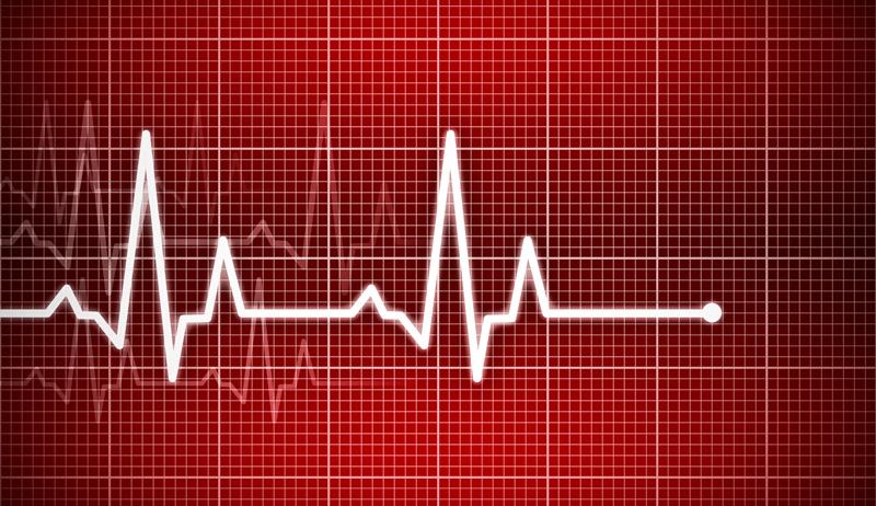 cardiog.jpg